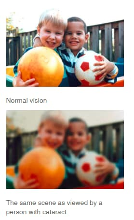 Cataract-before-and-after