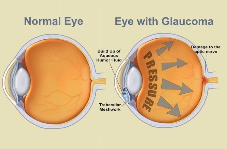 Diagram_Eyes_Glaucoma