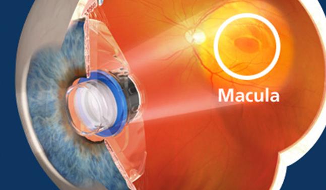 macular-degeneration-illustration