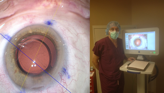 Innovative Procedure Performed by Columbus Ophthalmology Associates